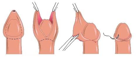 Обрезание у мужчин: как проводится обрезание у мусульман